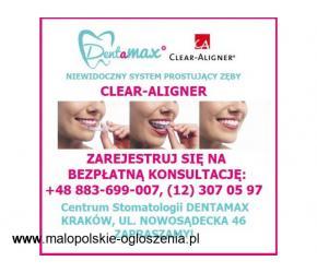 Niewidoczny aparat na zęby Clear-Aligner Kraków - Dentamax